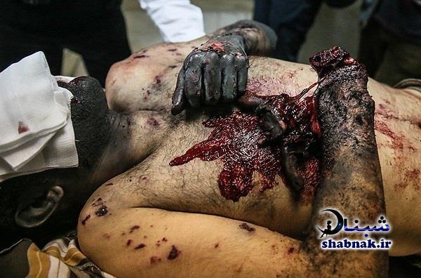 عکس قطع دست در چهارشنبه سوری
