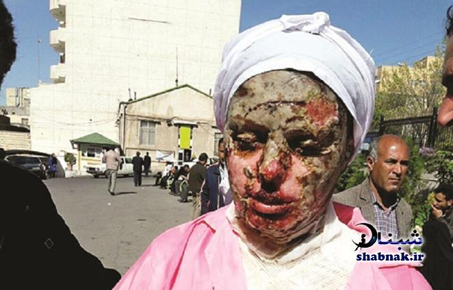 اسیدپاشی خواستگار بر روی معصومه جلیل پور