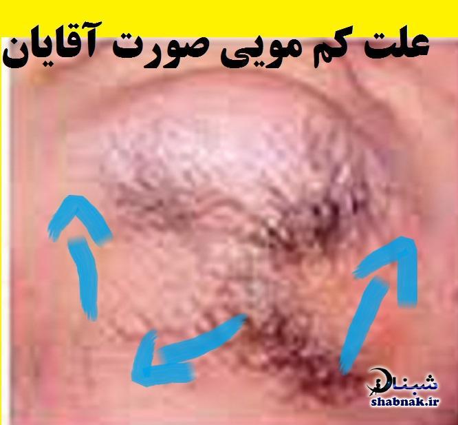 علت در نیامدن موی صورت در مردان چیست